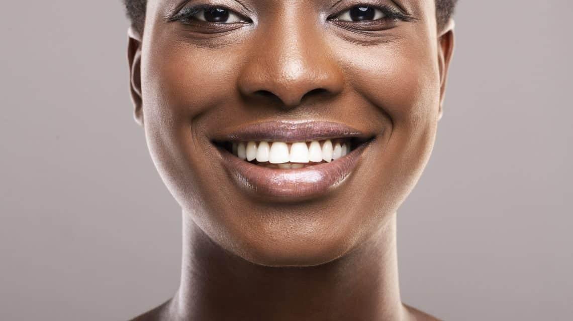Zoom Teeth Whitening Hicksville NY